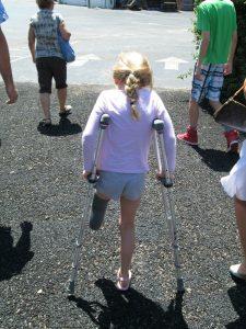 Zoe on crutches