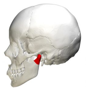 image of an un-displaced fracture